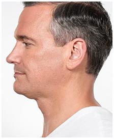 Irvine, Orange County, Kybella, double chin, neck, melt fat, dissolve, jawline contouring