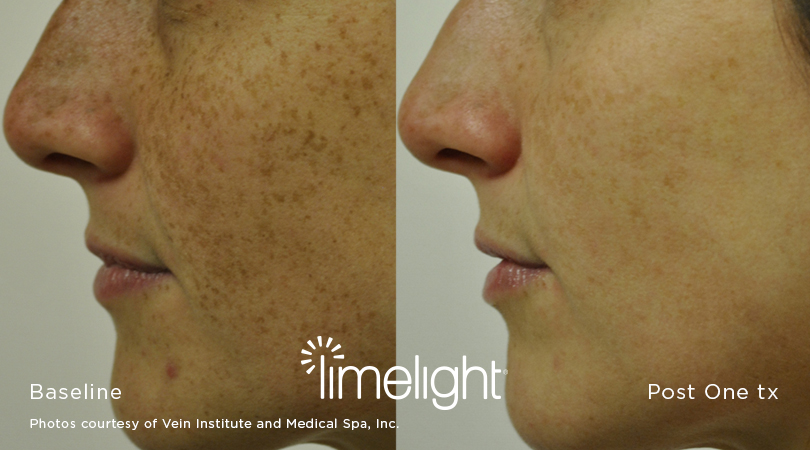 Irvine, Orange County, IPL, photofacial, facial rejuvenation, dark spots, limelight