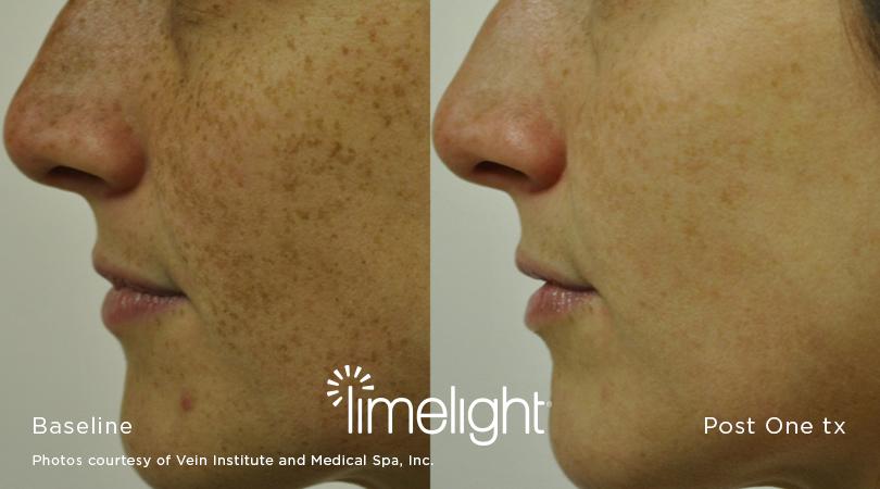 Irvine, Orange County, IPL, photofacial, facial rejuvenation, dark spots, limelight