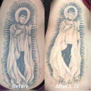 Irvine, Orange County, pico genesis laser, tattoo removal