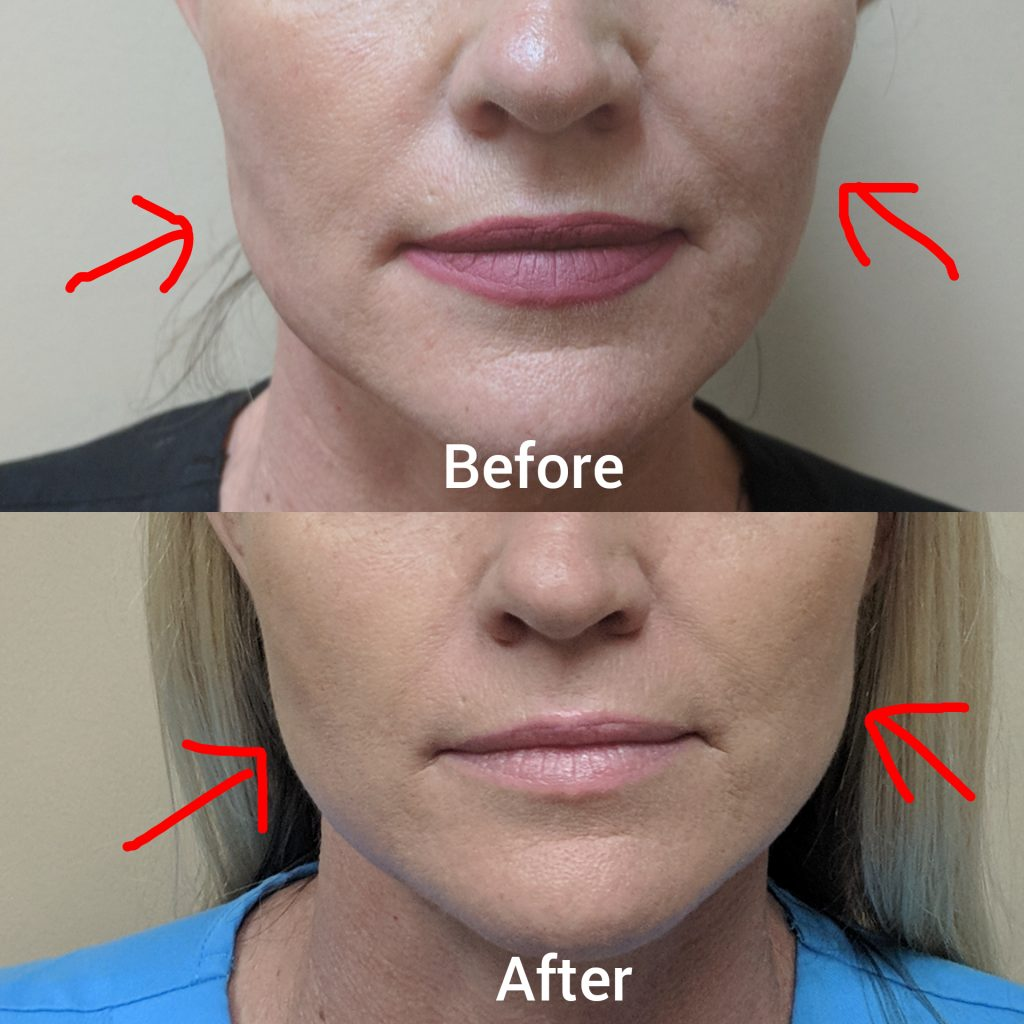 Irvine, Orange County, botox, wrinkle, face contouring, TMJ