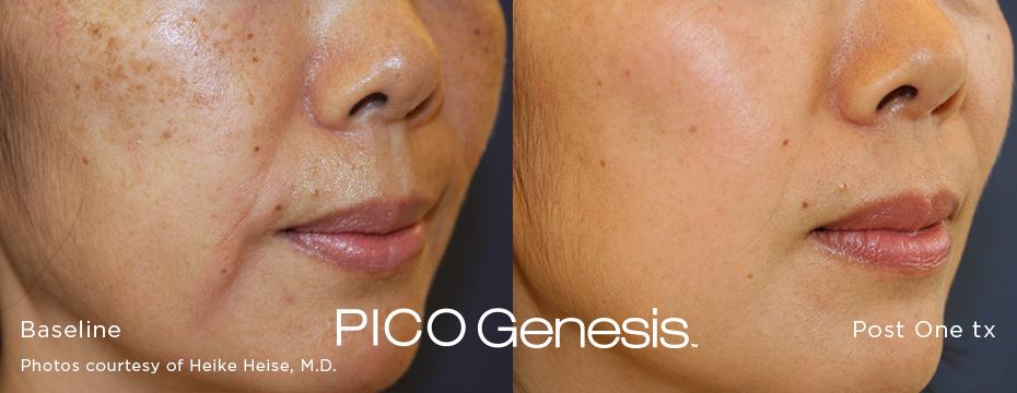 pico laser, Pico Genesis, Laser Dark Spot Removal, sun spot, age spot, liver spot, brighten skin, melasma, minority skin, Asian skin, latino skin, dark skin, african-american skin