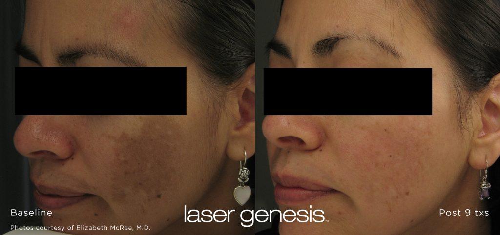 Irvine, Orange County, skin rejuvenation, laser, laser genesis, photofacial, redness, dark spots, wrinkle, scar, photofacial, laser genesis