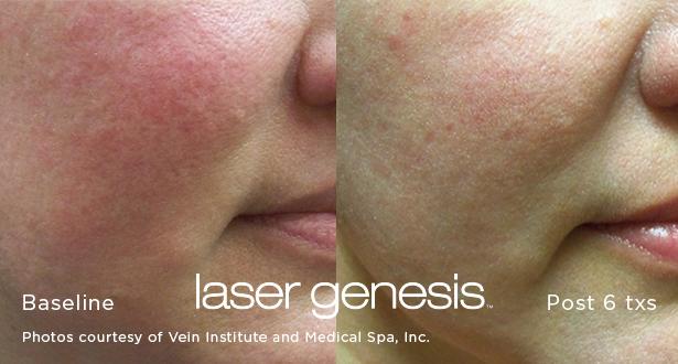 Irvine, California, photofacial, laser genesis, redness, wrinkles, pores, acne, scar, laser genesis, wrinkles