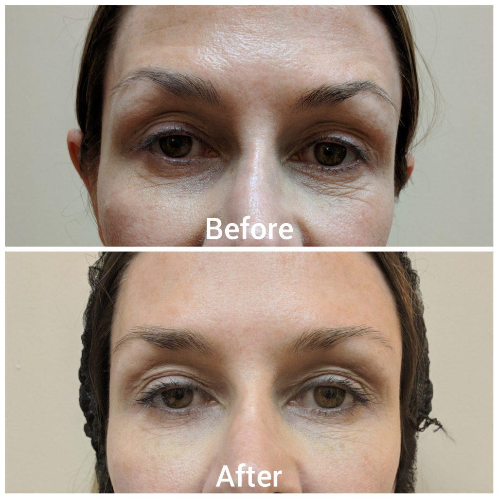 botox lines wrinkles