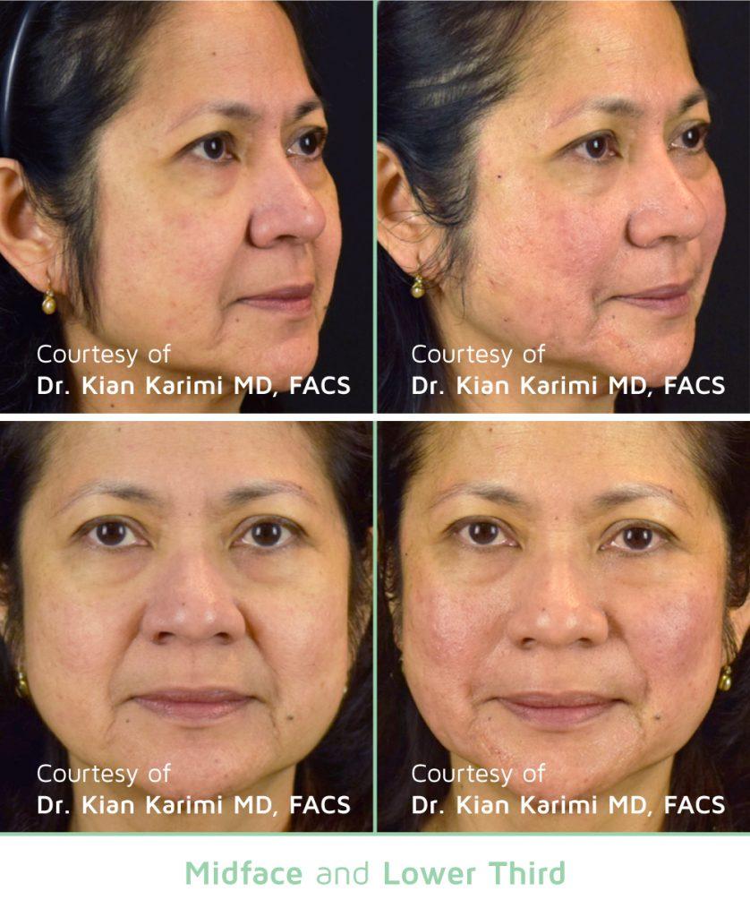 Irvine, Orange County, non-invasive, facelift, skin tightening, sagging skin, loose skin, thread lift, novathread