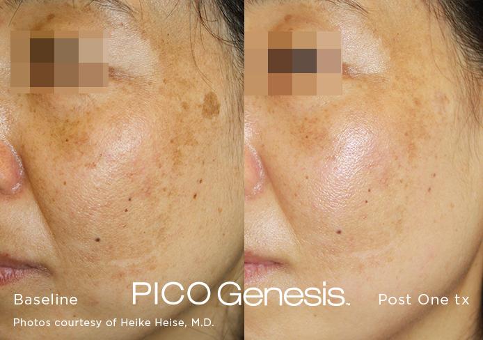 pico laser, Pico Genesis, Laser Dark Spot Removal, sun spot, age spot, liver spot, brighten skin, melasma, minority skin, Asian skin, latino skin, dark skin, african-american skin, Irvine, Orange County