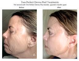perfect derma peel, chemical peel, skin peel, wrinkles, loose skin, acne
