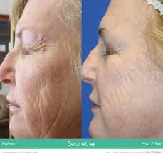 microneedling with radiofrequency, Secret RF, Infini, skin tightening, wrinkles, scar, acne scar, loose skin