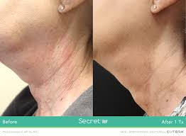 microneedling, microneedling with radiofrequency, secret rf, infini, skin lightning