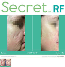 microneedling, microneedling with radiofrequency, secret rf, infini, acne scar