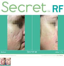 microneedling, microneedling with radiofrequency, secret rf, infini, acne scar