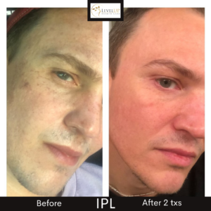 Justin before after pic IPL 2
