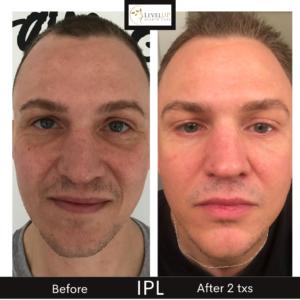 ipl laser photofacial dark sun spots pigmentation removal