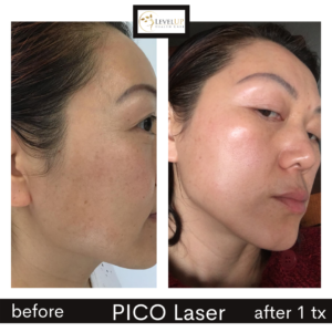 Rose before afer pic melasma right face
