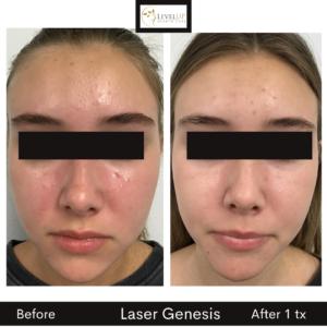 laser genesis redness rosacea acne