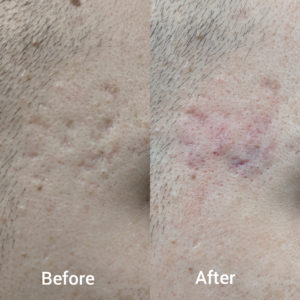 acne scar before after pic
