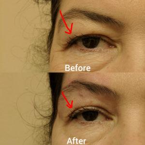 botox thread filler eyebrow lift
