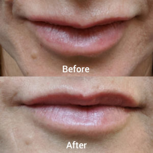 lips filler before after pic