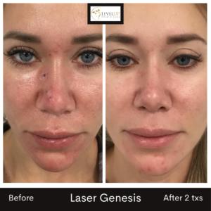 roseacea laser genesis skin redness