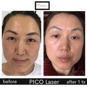 pico laser melasma brown dark sun spots