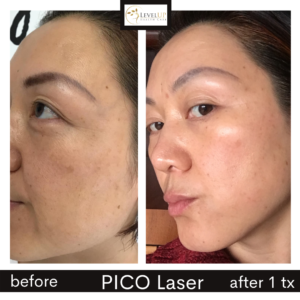 rose PICO before after pic left side