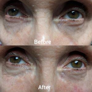 filler tear trough under eye dark circles