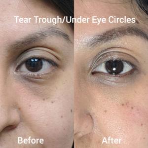 filler tear trough dark circles under eyes